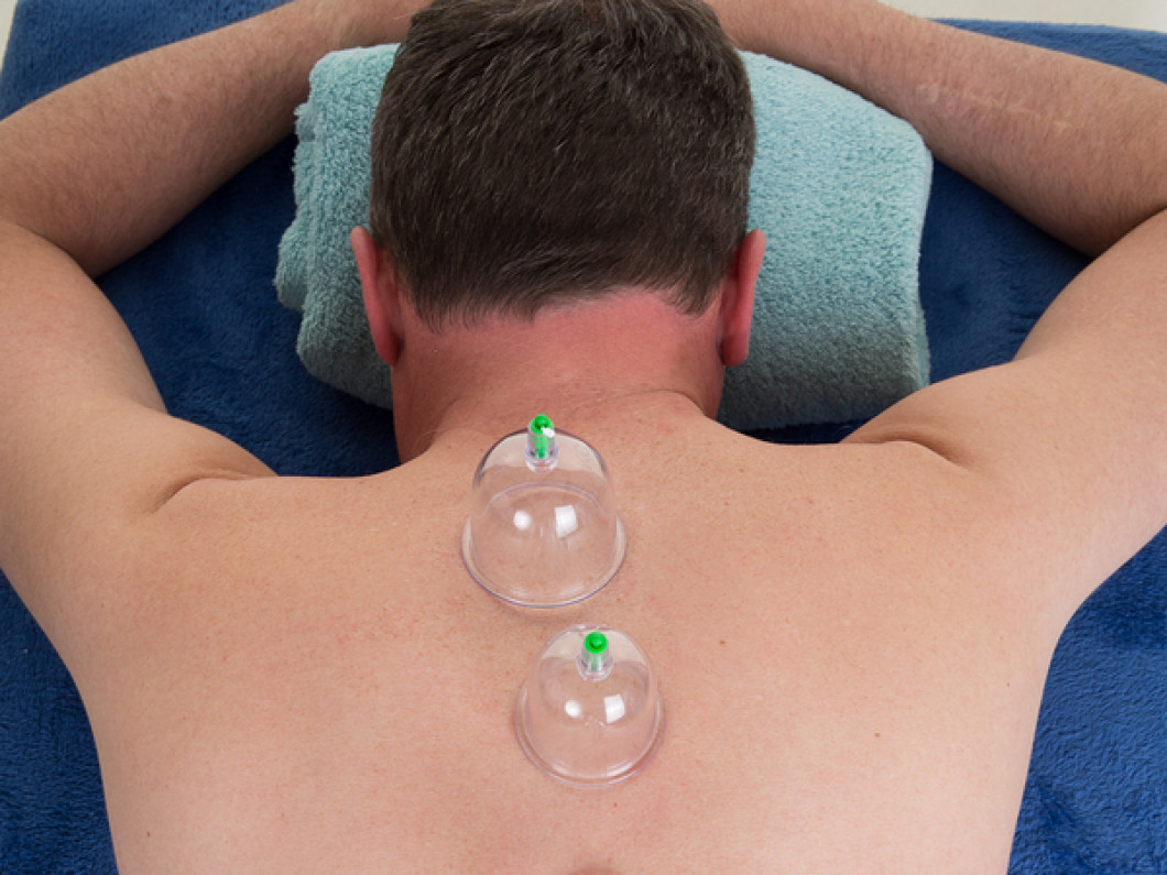 Cupping30 Min - $45Add on to Massage - $105 cupping sessions for $175
